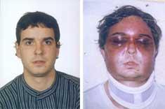 Unai Romano vor und nach seiner Verhaftung 2004